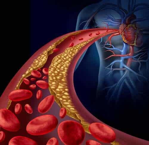En illustrasjon av en koagulert arterie.