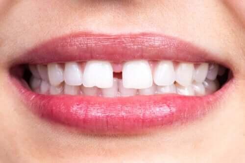 Kjennetegn og årsaker til tanndiastem