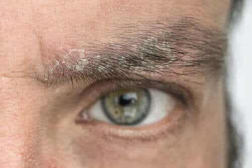 Flass i øyenbrynene: Hvorfor forekommer det og hvordan bli kvitt det