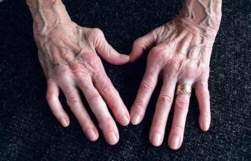 Hendene på en eldre kvinne med leddgikt.