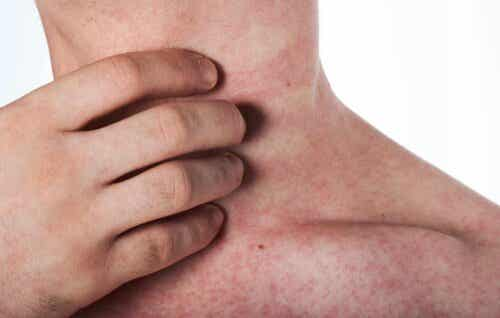 Mann som er allergisk mot lateks
