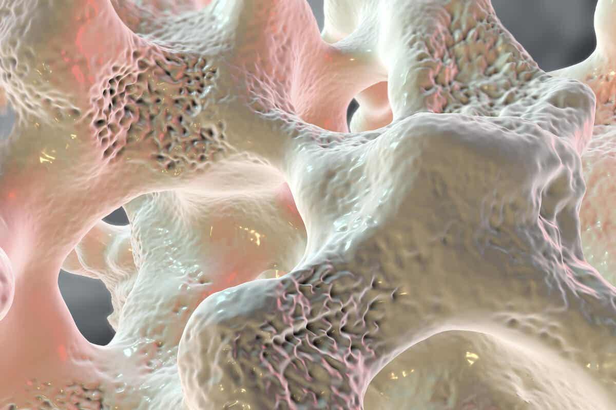 Osteoporose i et bein.