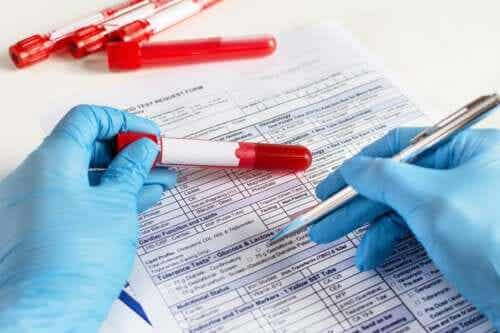 Hvorfor bør du vite blodtypen din?