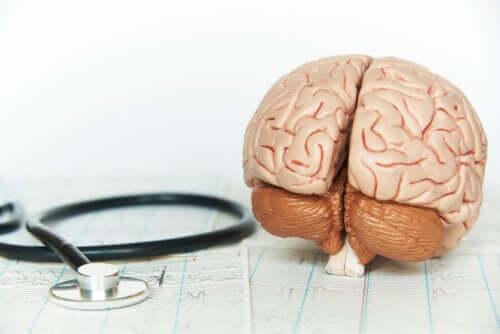 Slik påvirker mangel på hvile hjernen