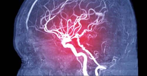 Symptomer, typer og årsaker til hjerneemboli