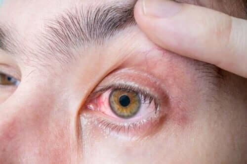Okulært melanom: symptomer og årsaker
