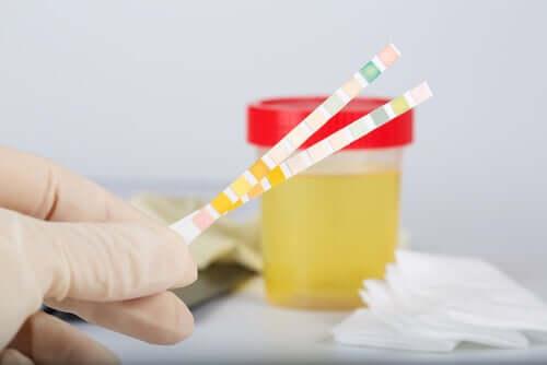 Hva er urin pH?
