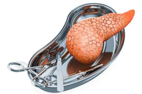 Bukspyttkjerteltransplantasjon: Hvorfor utføres det og hva er risikoen?