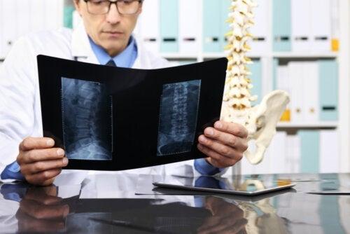 Når er det nødvendig å operere en skiveprolaps?